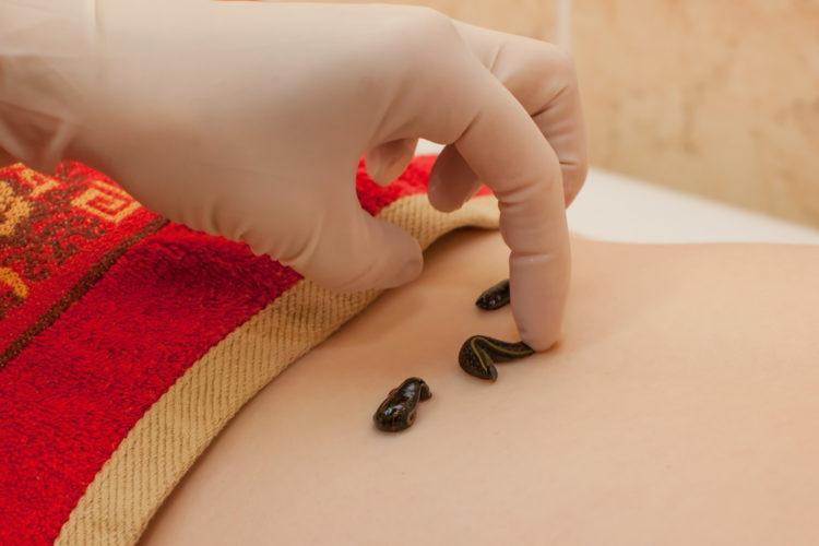 Гирудотерапия: древнейший метод природного оздоровления организма пиявками