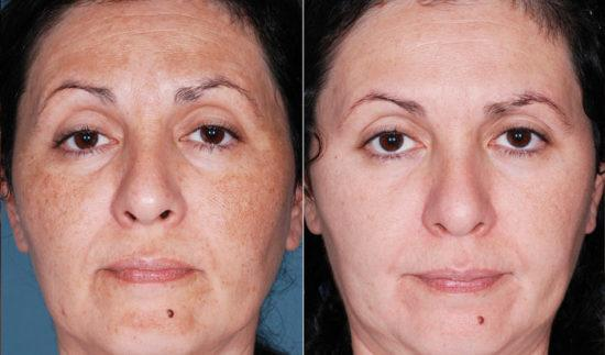 mezoterapiya-lica-do-i-posle