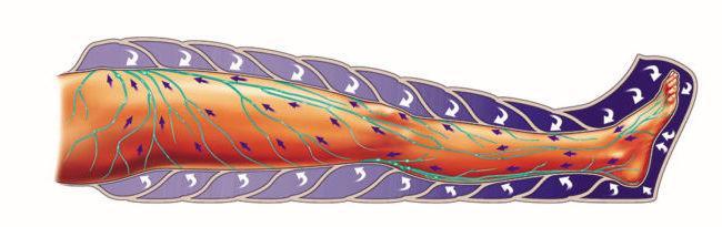 shema-pressoterapii