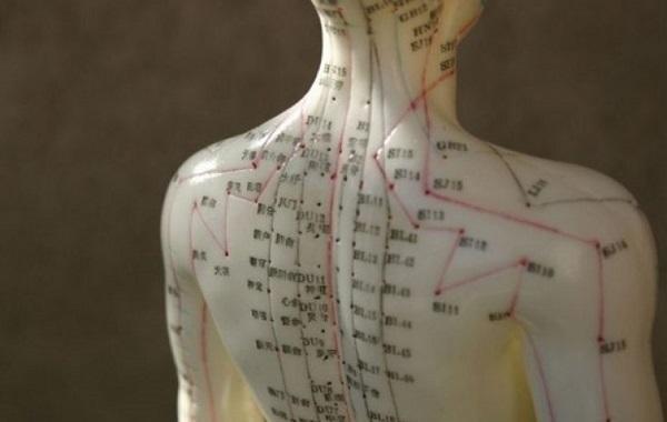 acupuncturа