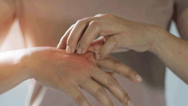 protiv-psoriaza